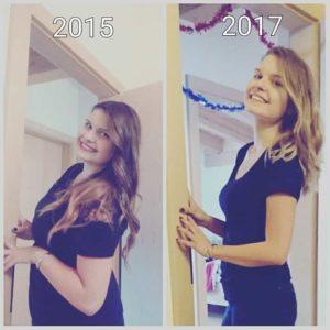 Vorher nachher Bild von Angela (2015 und 2017)